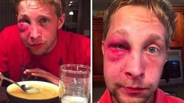 Kids Beat Up An Autistic Teen